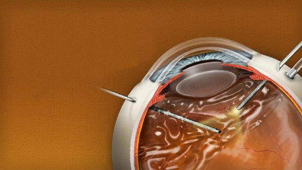 Phương pháp Vitrectomy trong điều trị vẩn đục dịch kính